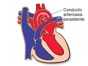 conducto-arteriosos-persistente