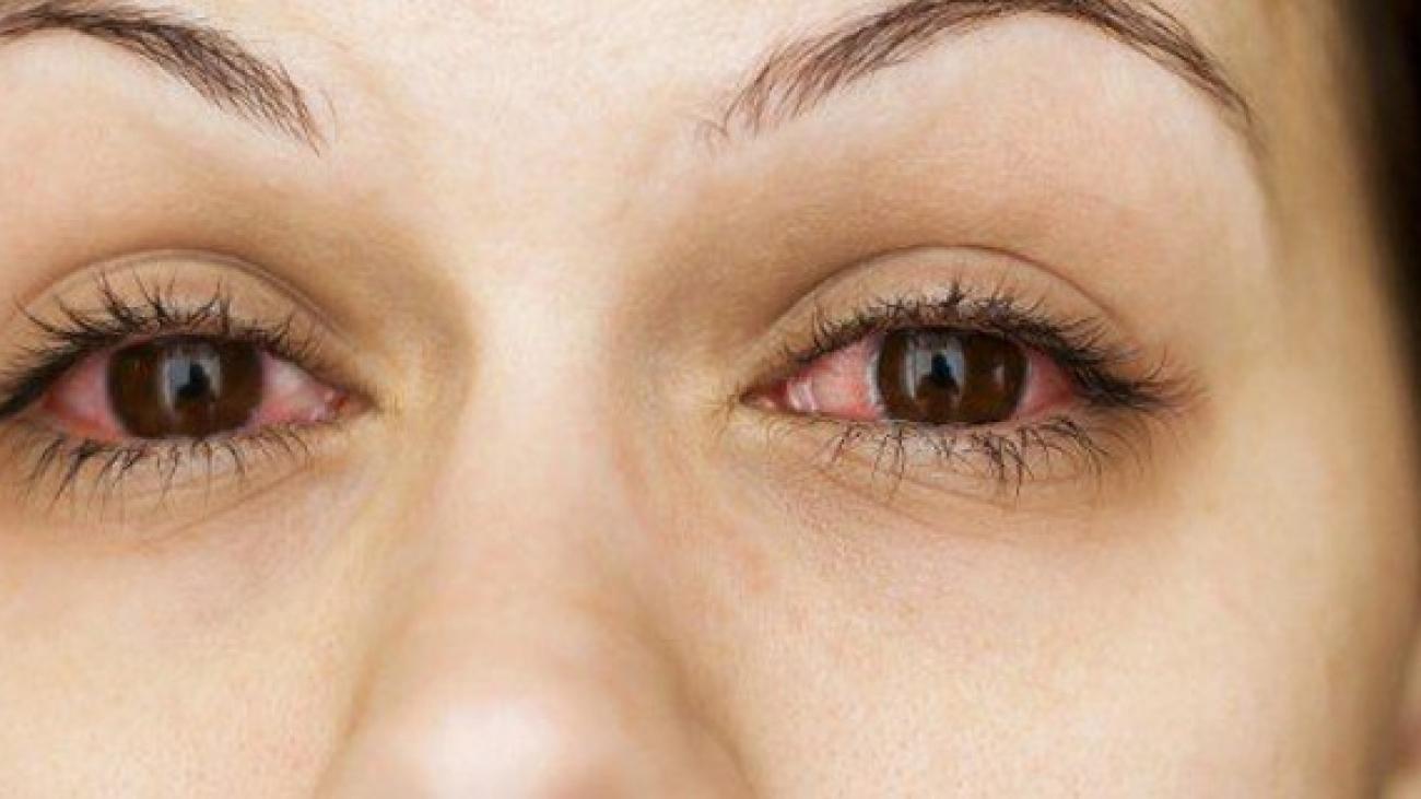 conjuntivitis-alergica-640