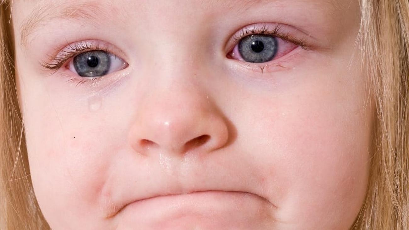 niña-conjuntivitis